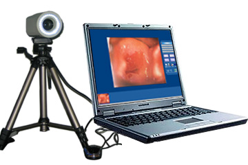 Software Of Vaginoscope Medicine Image Workstation