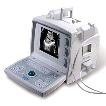 Portable and Foldaway Electronic Convex Ultrasound Scanner (Портативные и гнущейся электронное конвексное ультразвуковой сканер)